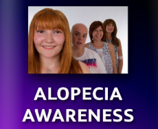 Diagnosed with alopecia in her teens, Katherine Brooks is educating others about the hair loss disease.