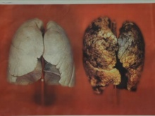 A picture of how smoking affects your lungs